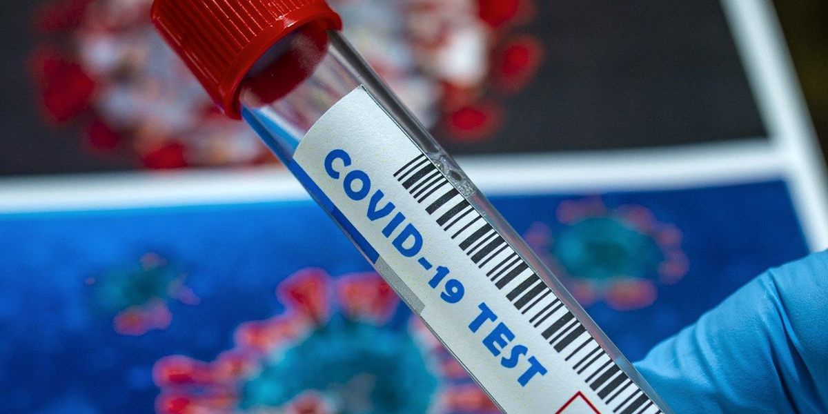 Uninsured SC residents can apply for free COVID-19 testing