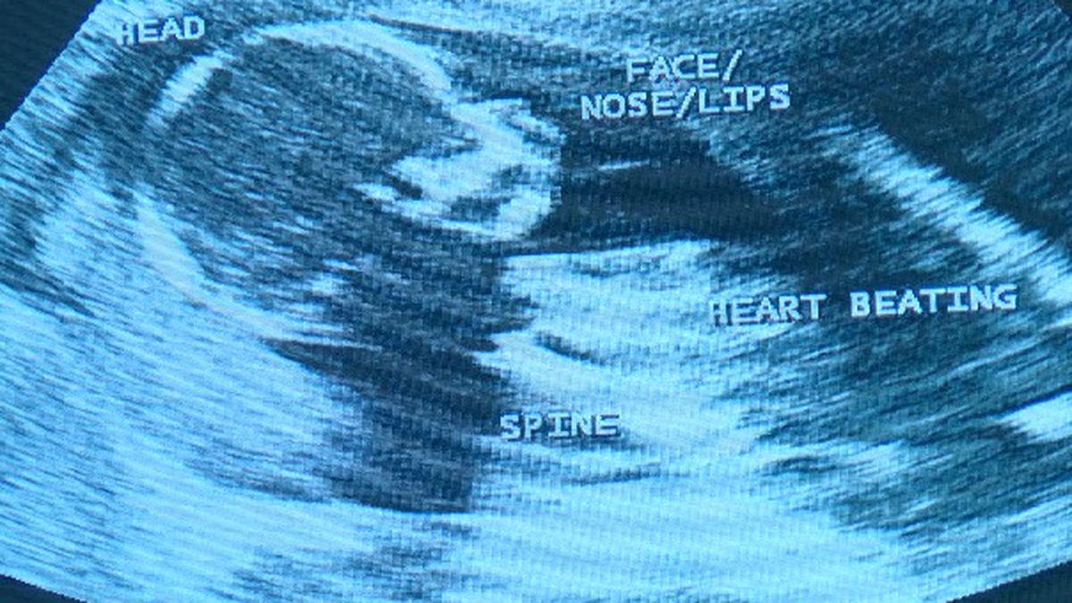 SC senators amend 'fetal heartbeat' bill to remove exceptions for rape, incest