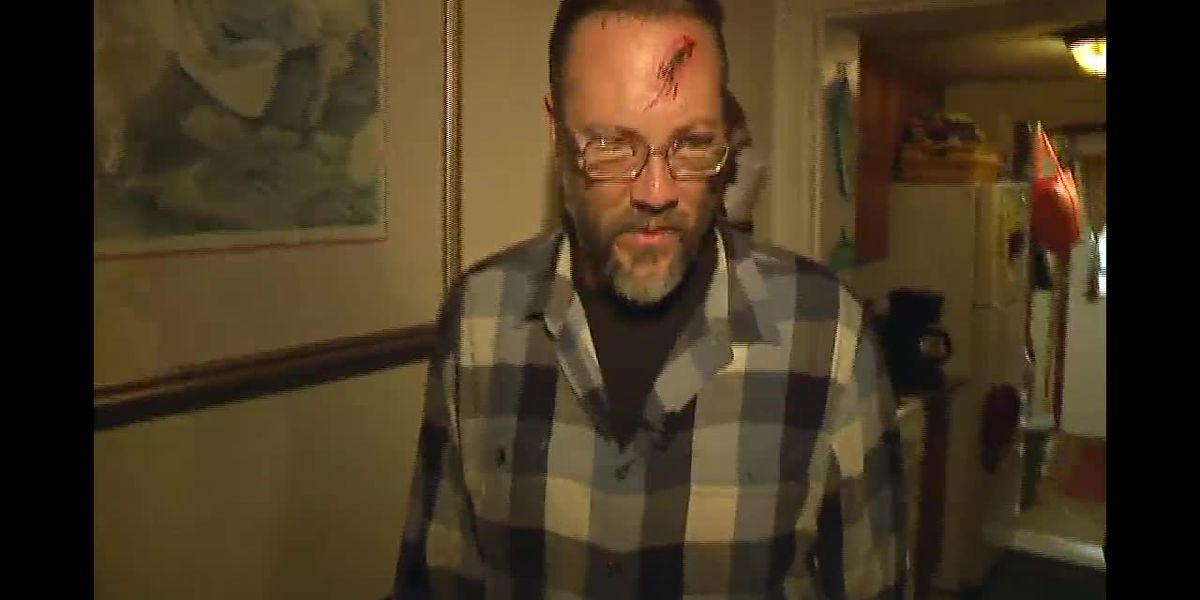 Burglar wielding meat cleaver attacks man, wife in their home
