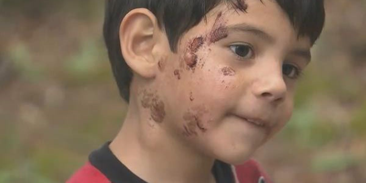 Dad accuses daycare of injuring son while washing his face